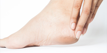 Heel Pain - Plantar Faciitis